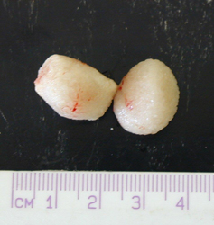 Bladder stones after extraction